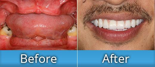 Dental implants all on four