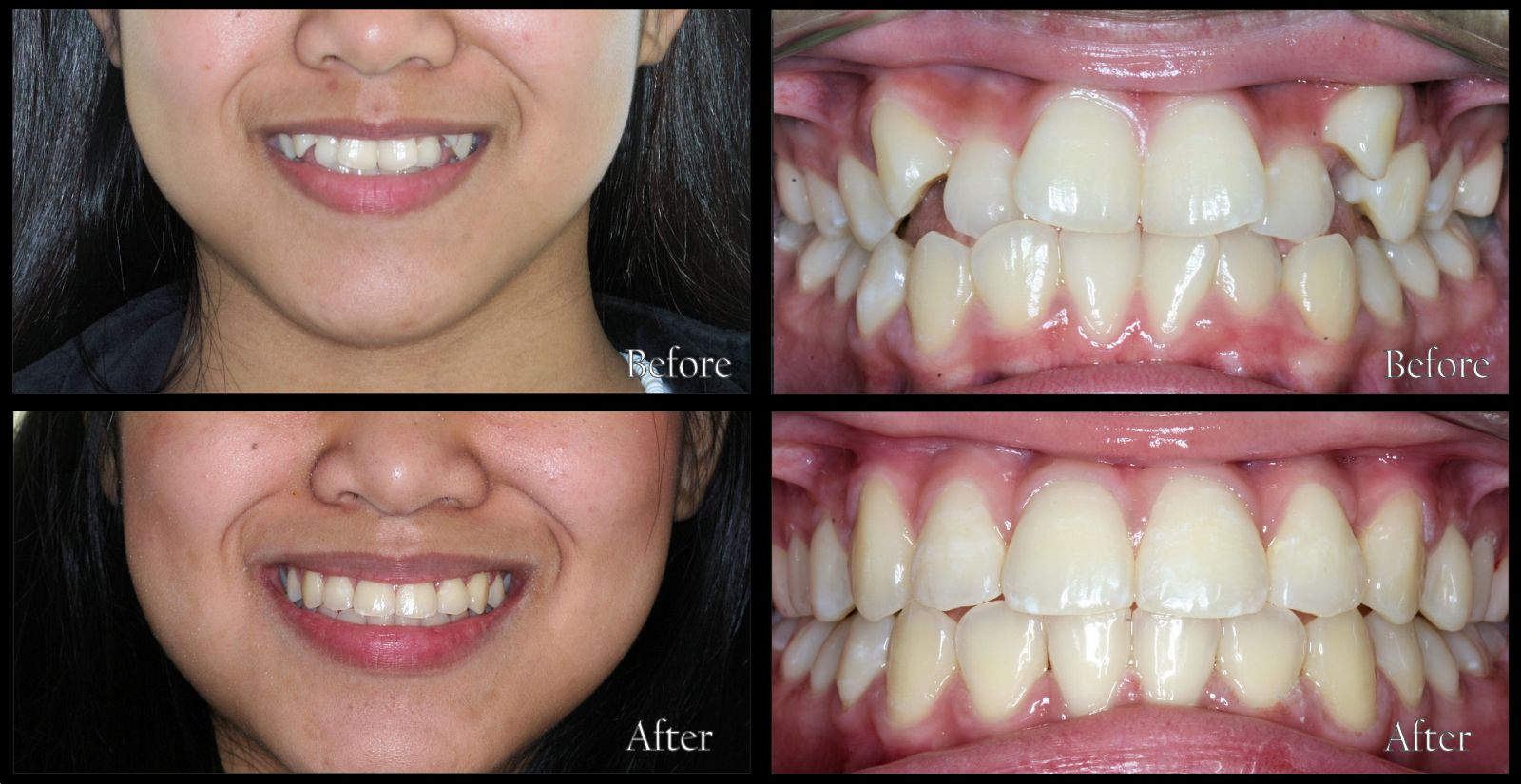 Orthodontic Patient 93 Before and After