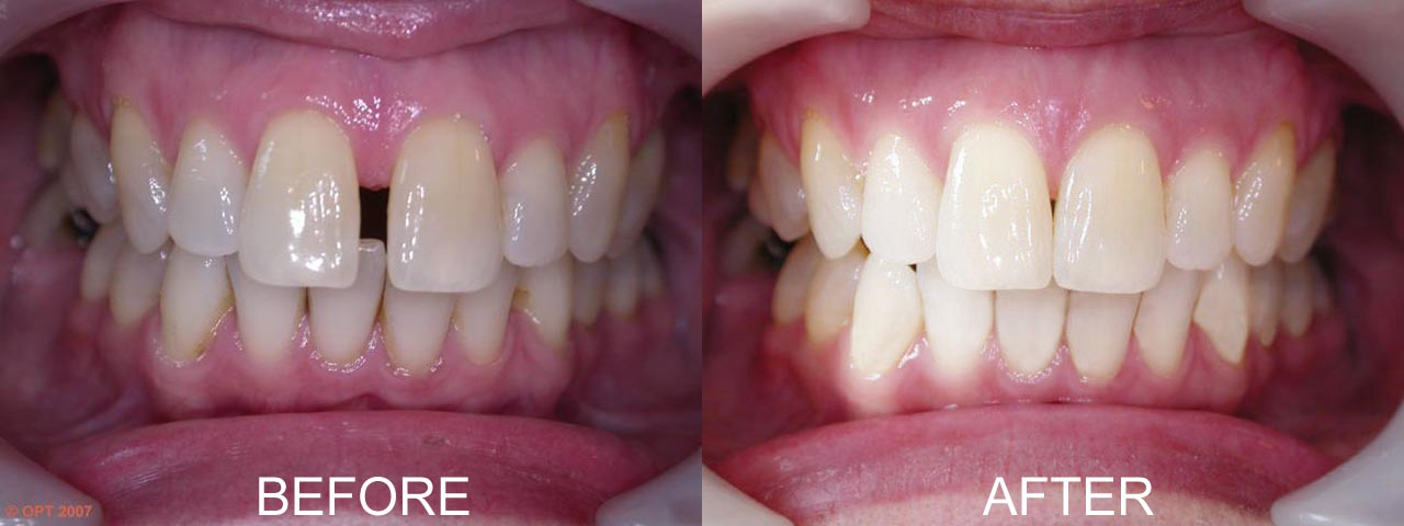 before-after-clearstep