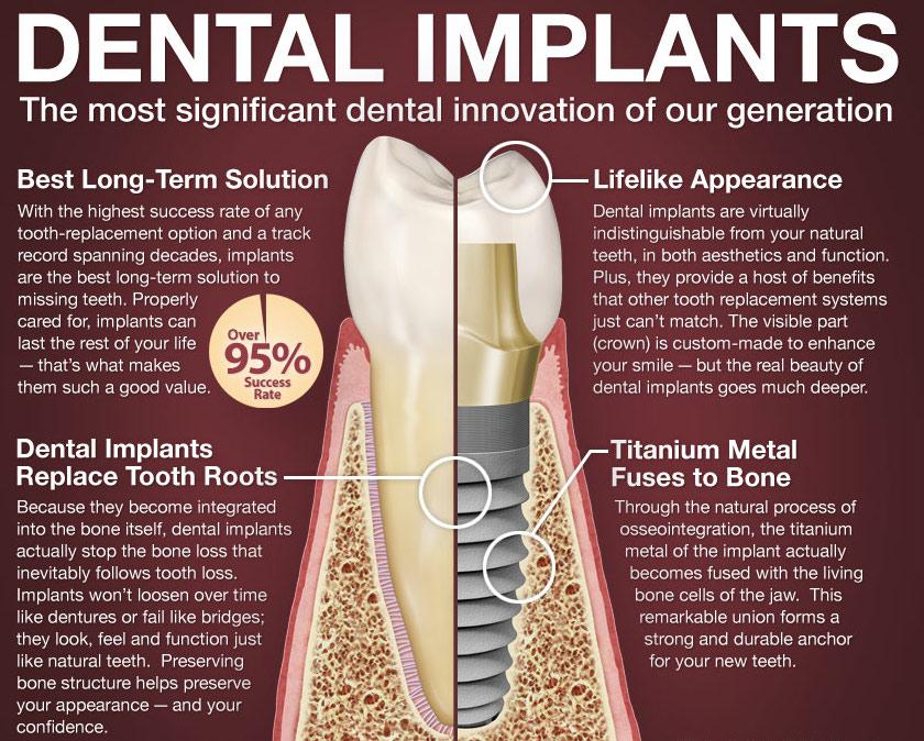 dental-implants-101-large