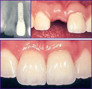 implant.5245220
