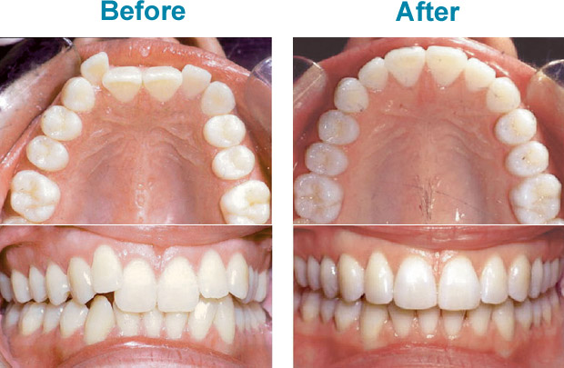 invisalign-before-after